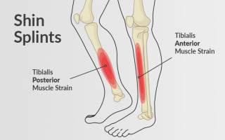 Воспаление надкостницы голени симптомы и лечение