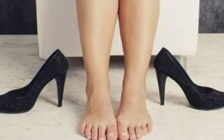Лечение поперечного плоскостопия у взрослых