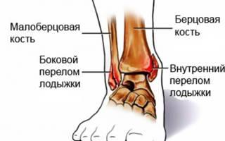 Упражнение для лодыжки после операции