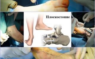 Оперативное лечение плоскостопия у взрослых