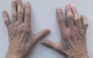 Серонегативный и серопозитивный ревматоидный артрит отличия