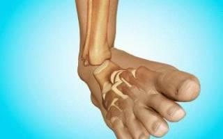 Помощь при вывихе ноги щиколотки