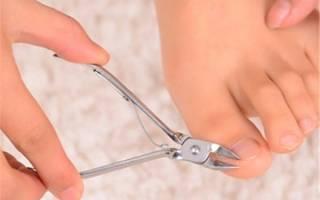 Как вывести гной из пальца на ноге