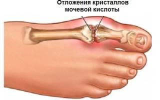 Уровень мочевой кислоты в крови при подагре