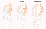 Выступает косточка на большом пальце ноги