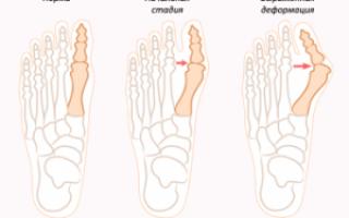 Выпирает кость на ноге возле большого пальца