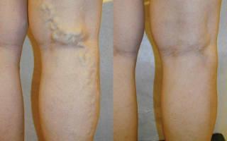 Варикоз под коленом лечение