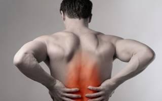 Разрыв ягодичной мышцы