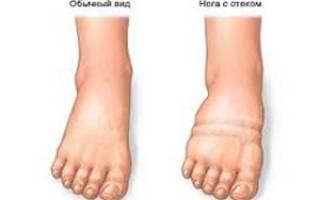 Отек после операции на ноге сколько держится