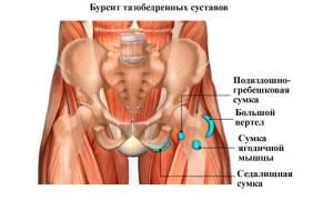 Бурсит подвздошно гребешковой сумки тазобедренного сустава