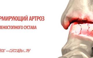 Артроз голеностопного сустава 1 степени лечение