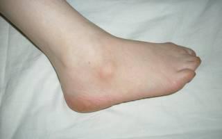 Шишка на щиколотке ноги с внешней стороны