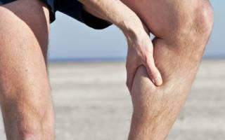 Вздутие вен на ногах у мужчин