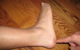 Немеет пятка левой ноги причины