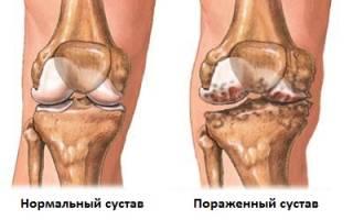 Остеоартроз коленного сустава 1 стадии