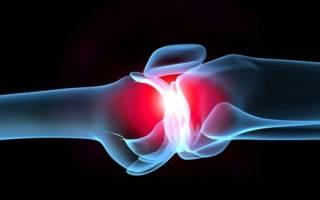 Упражнения при ревматоидном артрите от бубновского
