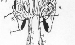 Суральные вены голени тромбоз