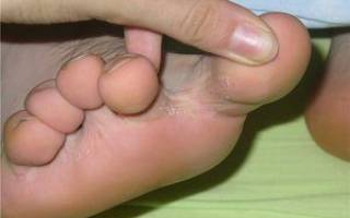 Нарост между пальцами ног болит