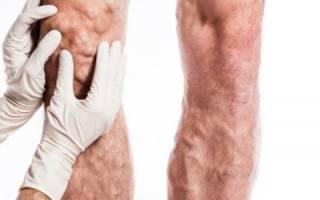 Варикоз на ногах у мужчин причины симптомы