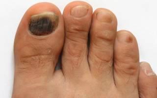 Ноготь на ноге стал коричневым