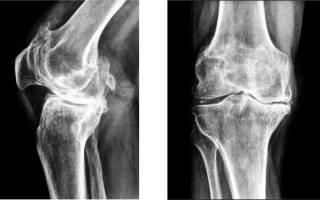 Массаж при артрите коленного сустава видео