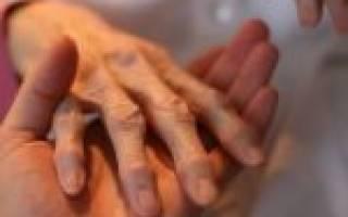 Дифференцированный артрит