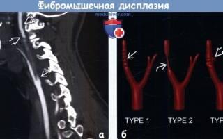 Фиброзно мышечная дисплазия