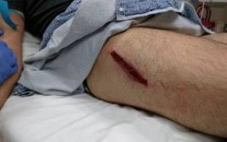 Как обработать открытую рану на ноге
