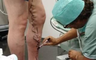 Варикоз внутренних органов малого таза