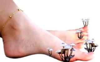 Сильный запах ног у женщин как избавиться
