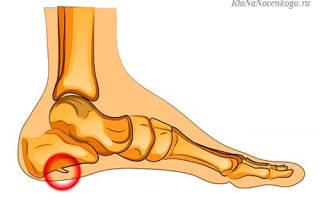 Что такое шпоры на ногах и пятках