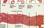 Легкая дисплазия ядра увеличены