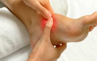 Артрит голени симптомы и лечение