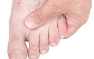 Воспаление мизинца на ноге