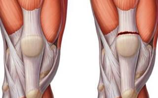 Растяжение мышц коленного сустава симптомы