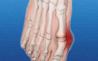 Профилактика косточки на ноге