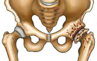 Коксартроз описание рентген