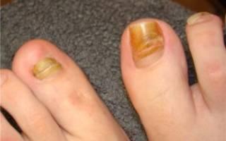 Ноготь на ноге болит при надавливании