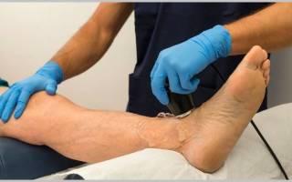 Гепариновая мазь при тромбозе