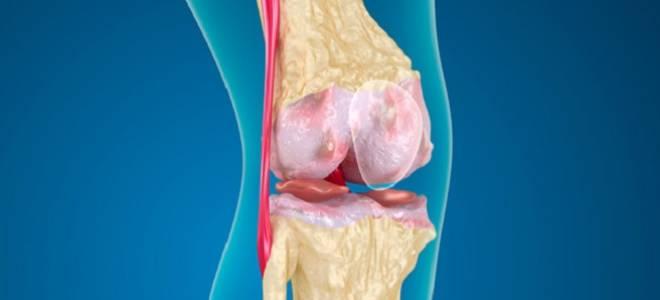 Феморопателлярный сустав