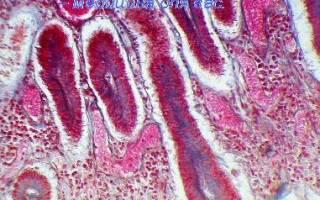 Пролиферация кишечного эпителия
