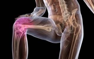 Боль в колене когда встаешь на колено